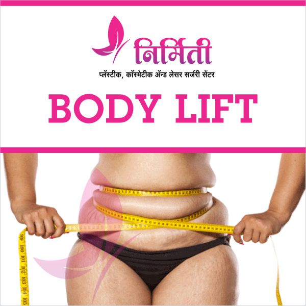 body-lift-surgery