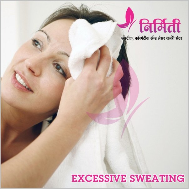 excessive-sweating
