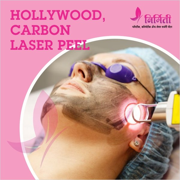 hollywood carbon peel treatment