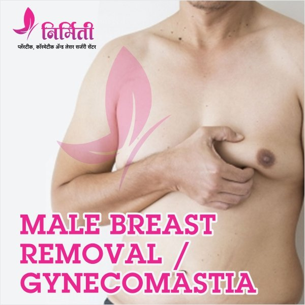 male-breast-removal