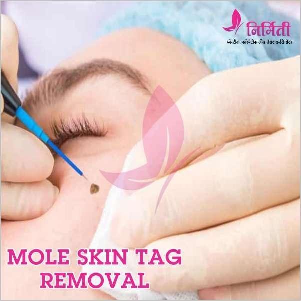 mole-skintag-removal