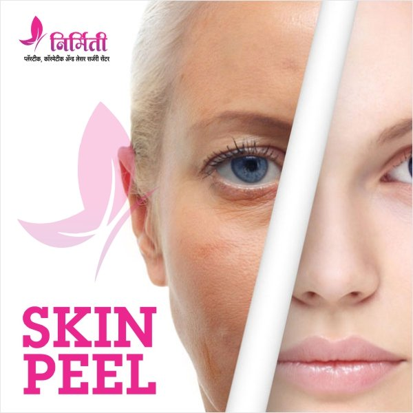 skin-peel-treatment