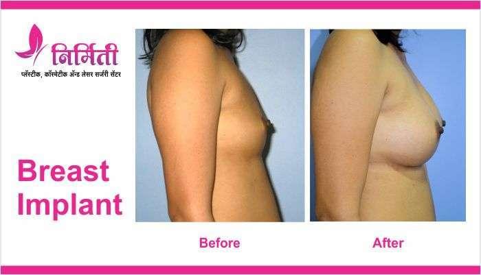 breast-implant-6