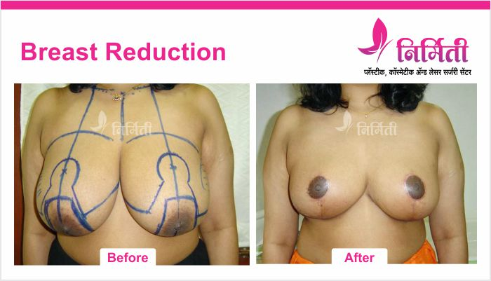 breast-reduction-1