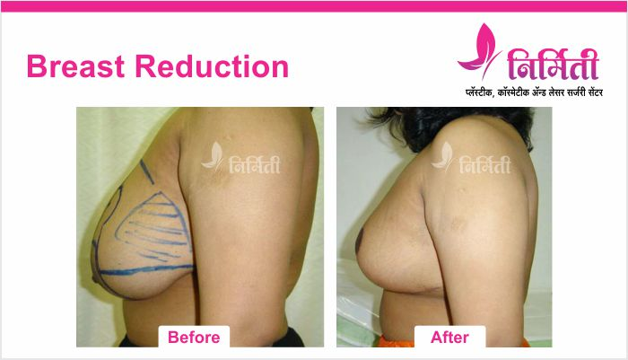 breast-reduction-2
