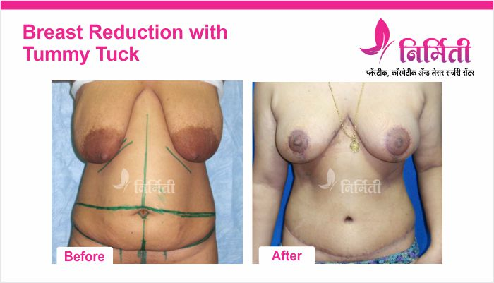 breast-reduction-with-tummy-tuck-2