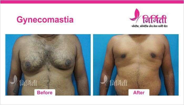 gynecomastia-3