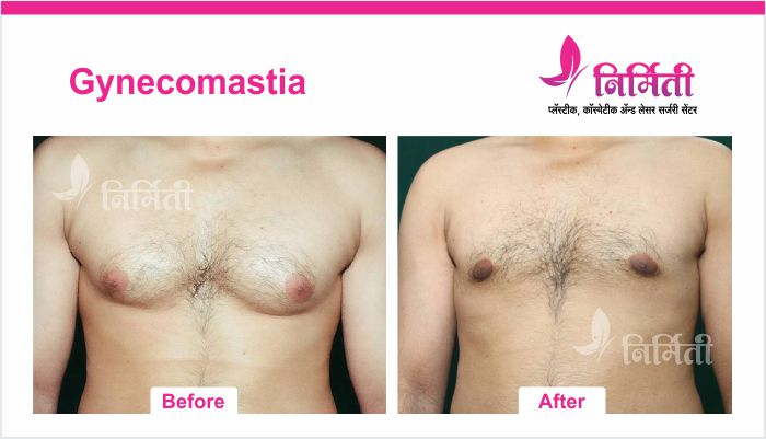 gynecomastia-5