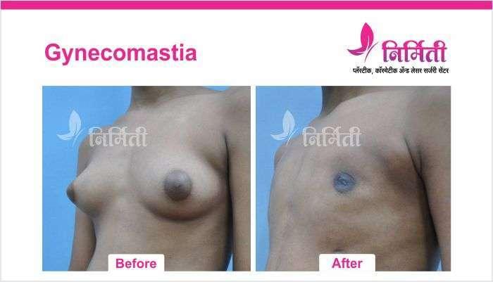 gynecomastia-6