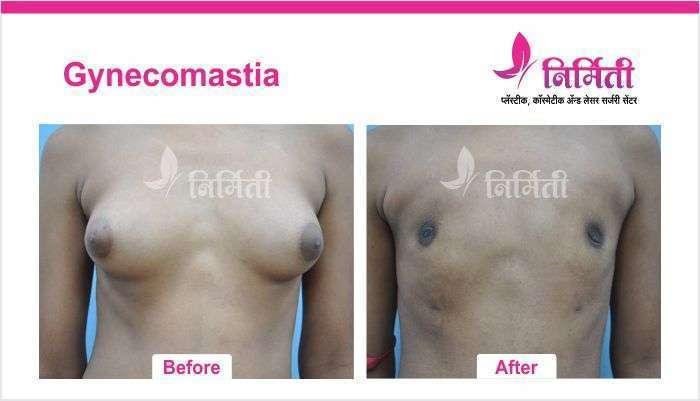 gynecomastia-7