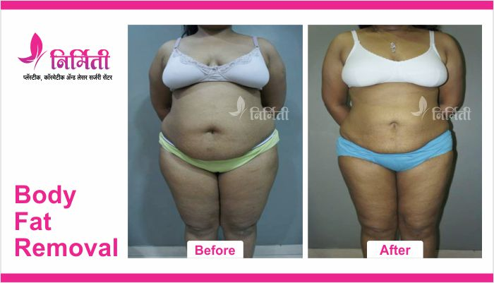 body-fat-removal