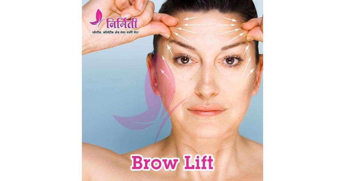 brow-lift-social