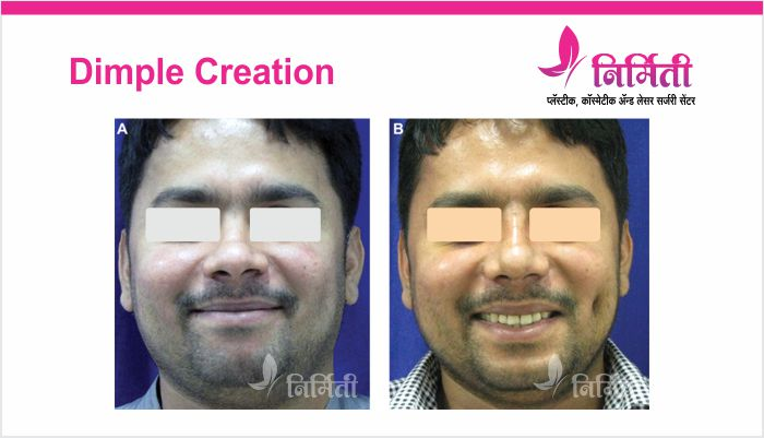 dimple-creation