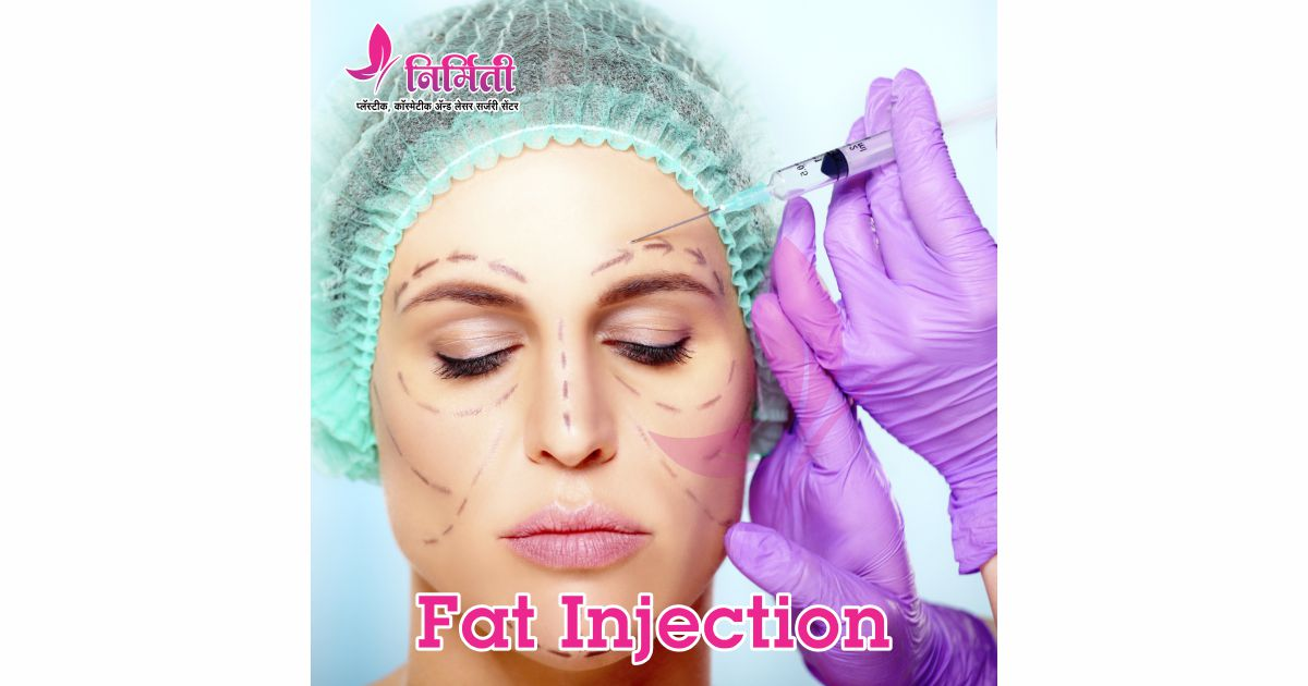 fat-injection-social