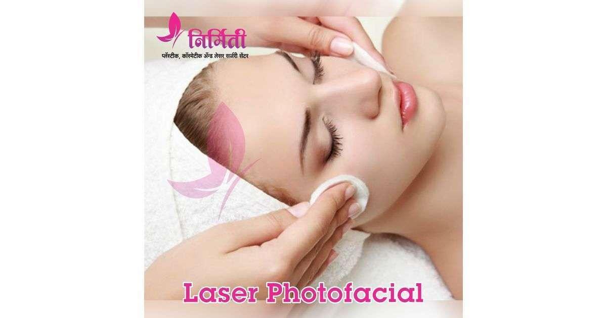 laser-photofacial-social