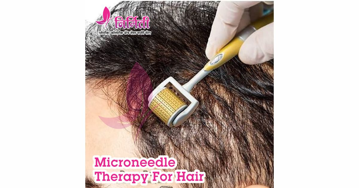microneedle-therapy-for-hair-social