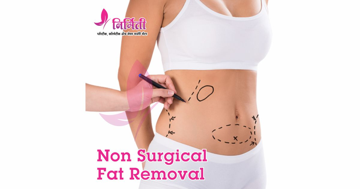 non-surgical-fat-removal-social