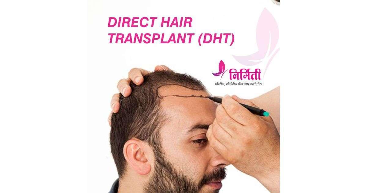 direct-hair-transplant-social