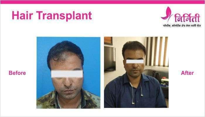 hair-transplant-6