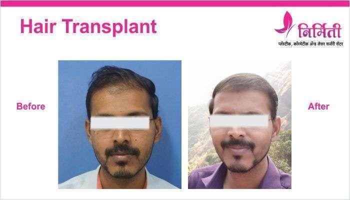 hair-transplant-img-1