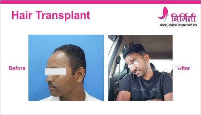 hair-transplant-img-2
