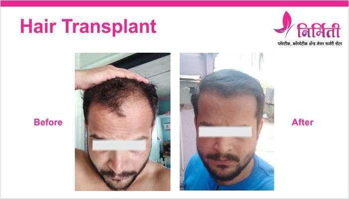 hair-transplant-img-3