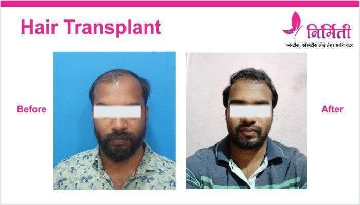 hair-transplant-img