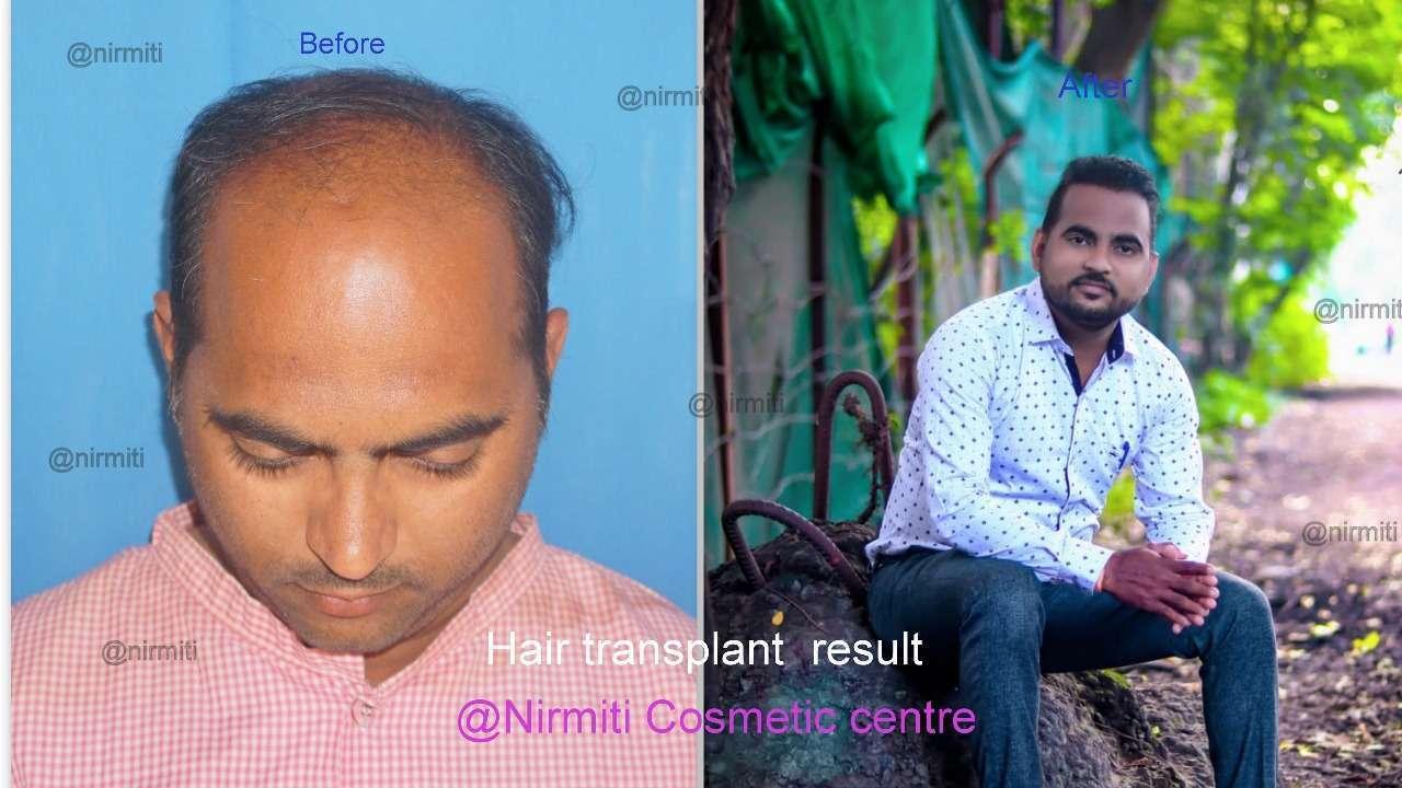 hair-transplant-8